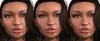Eden on vista moles freckles