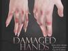 Damaged hands mp cut