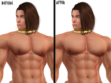Aesthetic Pecs Correction