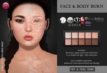 Izzie's - Face & Body Burn