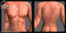 Severly Scarred Upper Body
