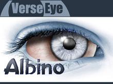 Albino - Blue - Mesh Eyes by VerseEye