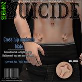 :Z.S: Cross hip implants - Mens
